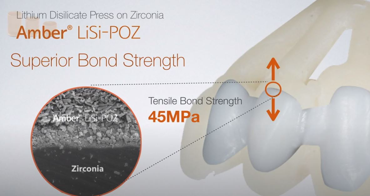 [Product] Amber LiSi-POZ _ LPZ (Lithium Disilicate-Based Press on Zirconia)